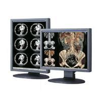"Totoku monitor: 54.102 cm (21.3"") , LCD, 1536x2048px 1400:1, 170 °, 100-240V, 50/60Hz, 80W, 474x220x529.9mm, 7.8kg, ....."