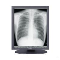 "Totoku monitor: 52.832 cm (20.8"") , LCD, 1536x2048px 900:1, 170 °, 100-240V, 50/60Hz, 85W, 474x220x529.9mm, 7.8kg, ....."