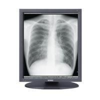 "Totoku monitor: 54.102 cm (21.3"") , LCD, 1536x2048px 1400:1, 170 °, 100-240V, 50/60Hz, 60W, 474x220x529.9mm, 7.8kg, ....."